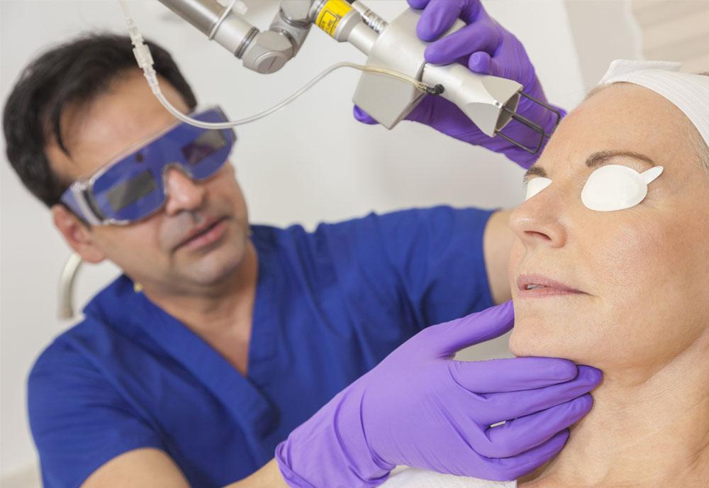 Cirugía laser CO2